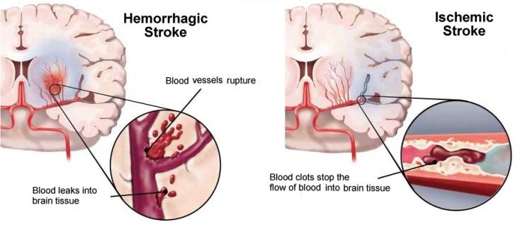 stroke_H_vs_I
